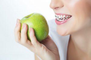 Junge Frau mit Zahnspange und Apfel in der Hand, die keine Schmerzen mit ihrer Spange hat